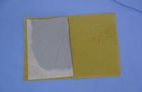 全ては患者様の為に・・・お肌に優しい手作りの湿布を使用。